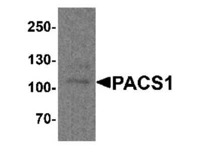 Rabbit Polyclonal Anti-PACS1 Antibody