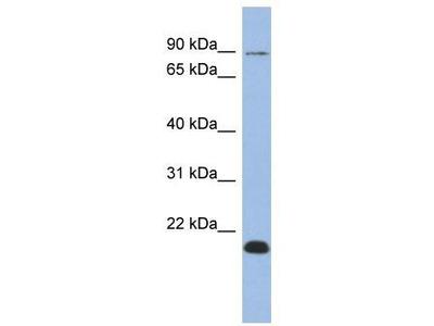 Rabbit Polyclonal Anti-TCEB3B Antibody