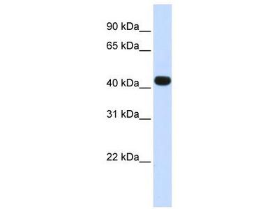 Rabbit Polyclonal Anti-HS3ST3B1 Antibody