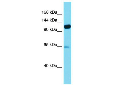 Rabbit Polyclonal Anti-PITRM1 Antibody