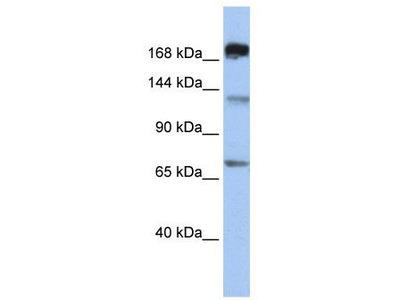 Rabbit Polyclonal Anti-MTR Antibody