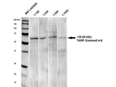 Mouse Monoclonal Anti-TARP Gamma2-4-8 (Stargazin) Antibody