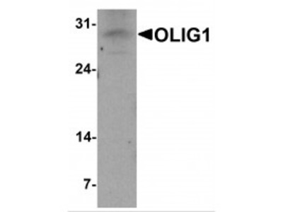 Rabbit Polyclonal Anti-OLIG1 Antibody