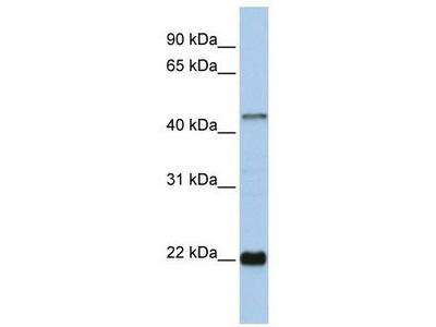 Rabbit Polyclonal Anti-ZNF581 Antibody