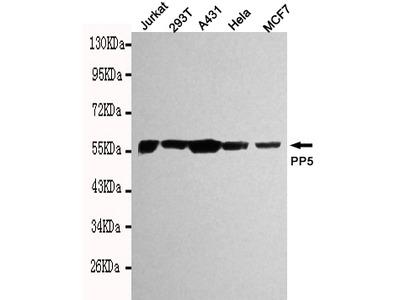 Mouse Monoclonal PP5 Antibody
