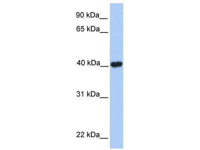 Rabbit Polyclonal Anti-GABPB2 Antibody