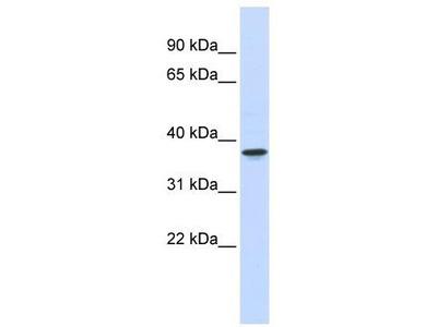 Rabbit Polyclonal Anti-THOC6 Antibody