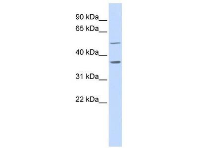 Rabbit Polyclonal Anti-PTGR2 Antibody