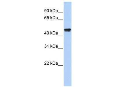 Rabbit Polyclonal Anti-QTRTD1 Antibody