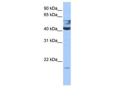 Rabbit Polyclonal Anti-QTRT1 Antibody