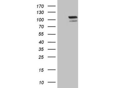 EPAS1 mouse monoclonal antibody,clone OTI6G3