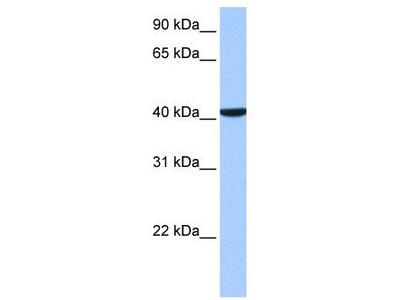 Rabbit Polyclonal Anti-CC2D1B Antibody