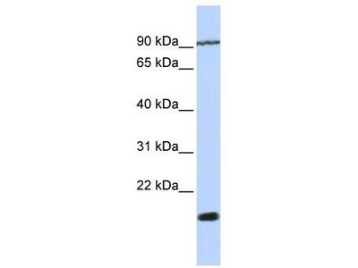 Rabbit Polyclonal Anti-TM4SF4 Antibody