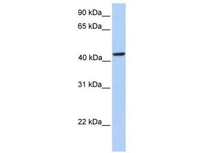 Rabbit Polyclonal Anti-PAICS Antibody