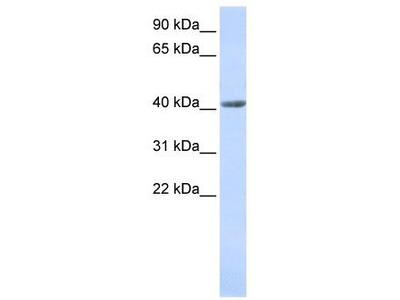 Rabbit Polyclonal Anti-SMYD3 Antibody
