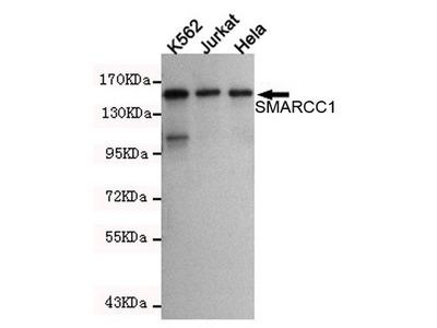 Mouse Monoclonal SMARCC1 Antibody