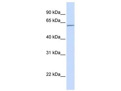 Rabbit Polyclonal Anti-CES5A Antibody