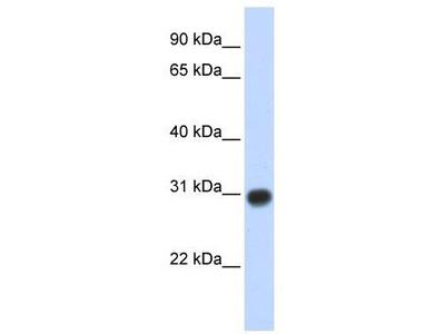Rabbit Polyclonal Anti-ZMYND19 Antibody
