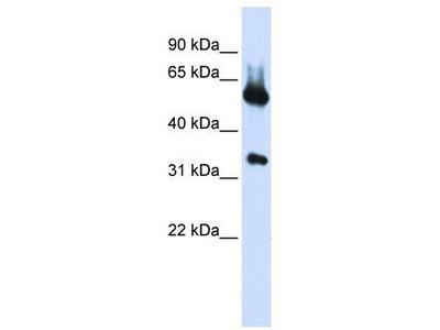 Rabbit Polyclonal Anti-ALAS2 Antibody