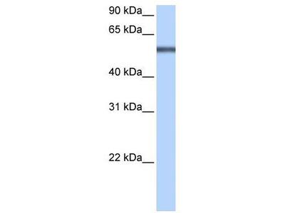 Rabbit Polyclonal Anti-LRRC8E Antibody
