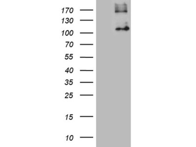 GPNMB mouse monoclonal antibody,clone OTI2E10