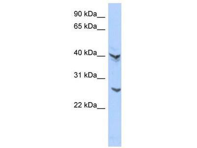 Rabbit Polyclonal Anti-ATP6V0E2 Antibody