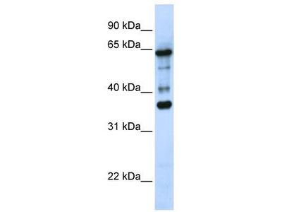 Rabbit Polyclonal Anti-ZNF630 Antibody