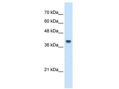 Rabbit Polyclonal Anti-IFI44L Antibody