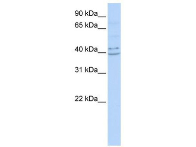 Rabbit Polyclonal Anti-PYHIN1 Antibody