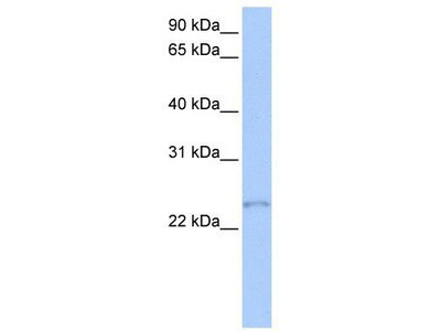 Rabbit Polyclonal Anti-TCEAL1 Antibody