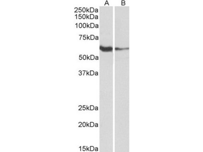 Goat Polyclonal Anti-FCRL2 (aa92-104) Antibody