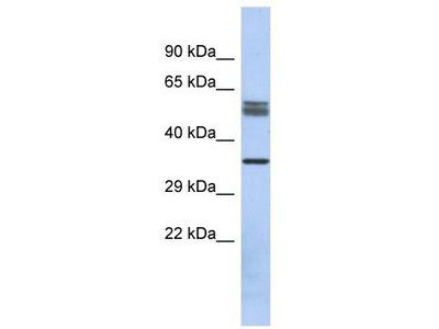 Rabbit Polyclonal Anti-DBT Antibody