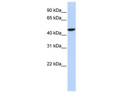 Rabbit Polyclonal Anti-GABRR2 Antibody