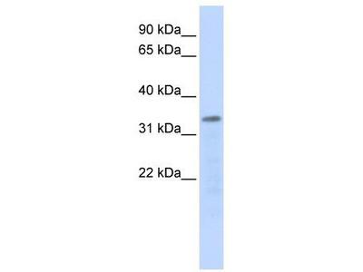 Rabbit Polyclonal Anti-POLR3F Antibody
