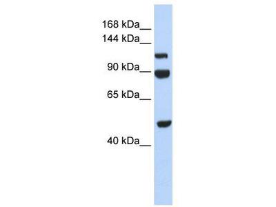 Rabbit Polyclonal Anti-NARG1L Antibody