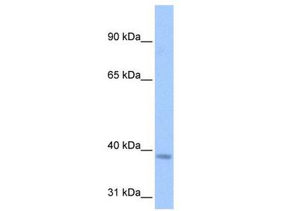 Rabbit Polyclonal Anti-NSUN3 Antibody