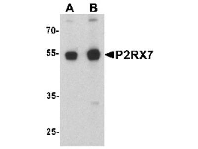 Rabbit Polyclonal Anti-P2RX7 Antibody