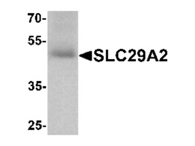Rabbit Polyclonal Anti-SLC29A2 Antibody