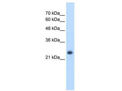 Rabbit Polyclonal Anti-NNMT Antibody