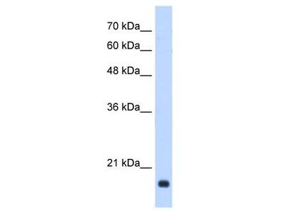 Rabbit Polyclonal Anti-GADD45B Antibody