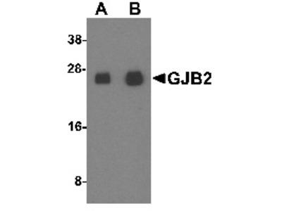 Rabbit Polyclonal Anti-GJB2 Antibody