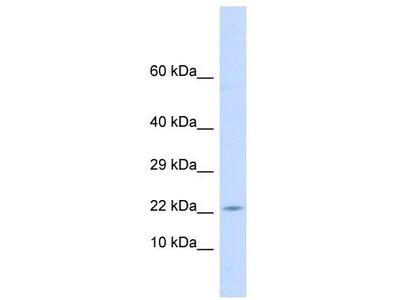 Rabbit Polyclonal Anti-CRH Antibody