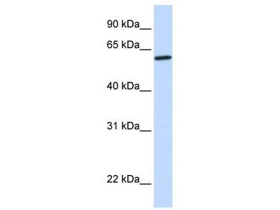 Rabbit Polyclonal Anti-CYP27A1 Antibody