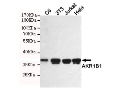 Mouse Monoclonal AKR1B1 Antibody