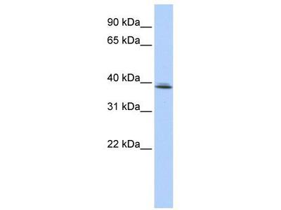 Rabbit Polyclonal Anti-SRRD Antibody