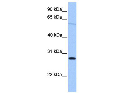 Rabbit Polyclonal Anti-CBLN4 Antibody
