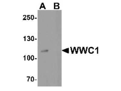 Rabbit Polyclonal Anti-WWC1 Antibody