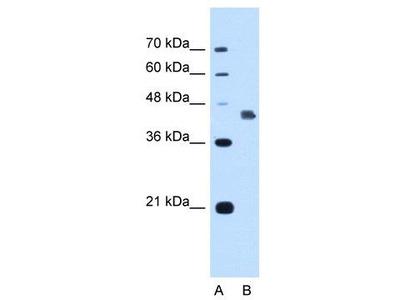 Rabbit Polyclonal Anti-DFNA5 Antibody