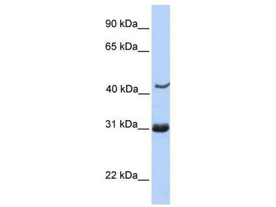 Rabbit Polyclonal Anti-NUP35 Antibody