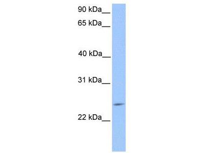 Rabbit Polyclonal Anti-PTTG2 Antibody